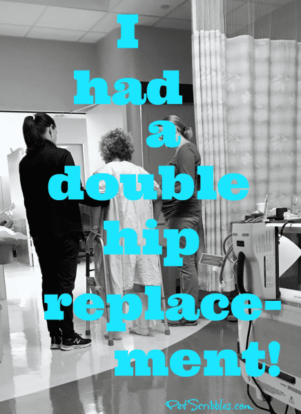 I had a double hip replacement